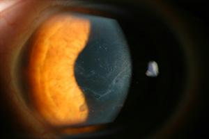 Excimerlasertherapie bei Erosionen in Zürich on macular corneal dystrophy, congenital stromal corneal dystrophy, map dot cornea, lattice corneal dystrophy type i, fleck corneal dystrophy, lisch epithelial corneal dystrophy, map dot syndrome, posterior polymorphous corneal dystrophy 2, granular corneal dystrophy type ii, map dot fingerprint treatment, map dot fingerprint disorder, map measles strains, posterior polymorphous corneal dystrophy 3, map dot atrophy, recurrent corneal erosion, map dot dysstrohy, corneal dystrophy of bowman layer, type ii, map dot fingerprint corneal epithelial, schnyder crystalline corneal dystrophy, posterior amorphous corneal dystrophy, x-linked endothelial corneal dystrophy, posterior polymorphous corneal dystrophy 1, congenital endothelial dystrophy type 2, subepithelial mucinous corneal dystrophy, gelatinous drop-like corneal dystrophy,
